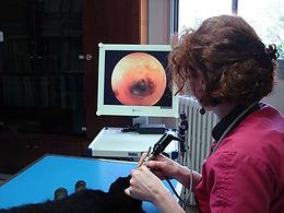 fibroscope