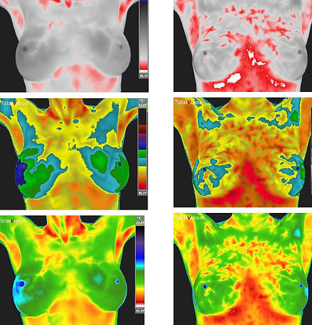 breast-hormonal-mottling-thermograph-sca