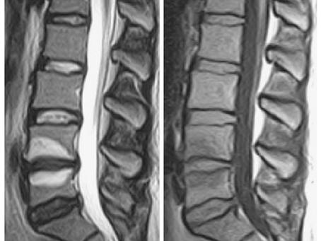 What is Degenerative Endplate Sclerosis