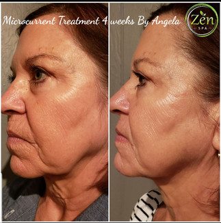 Microcurrent Treatment - 4 weeks