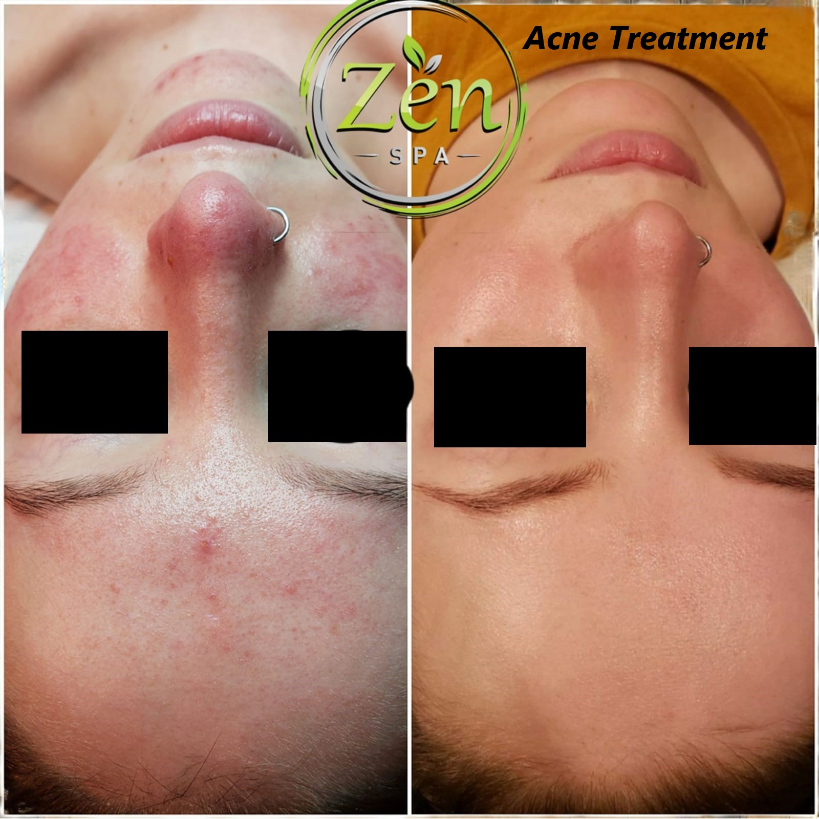 Acne Treatment 1