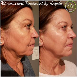 Microcurrent Treatment