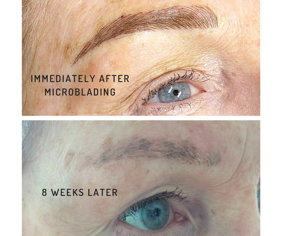 Microblading gone wrong.