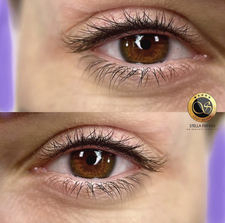 Lash Enhancement