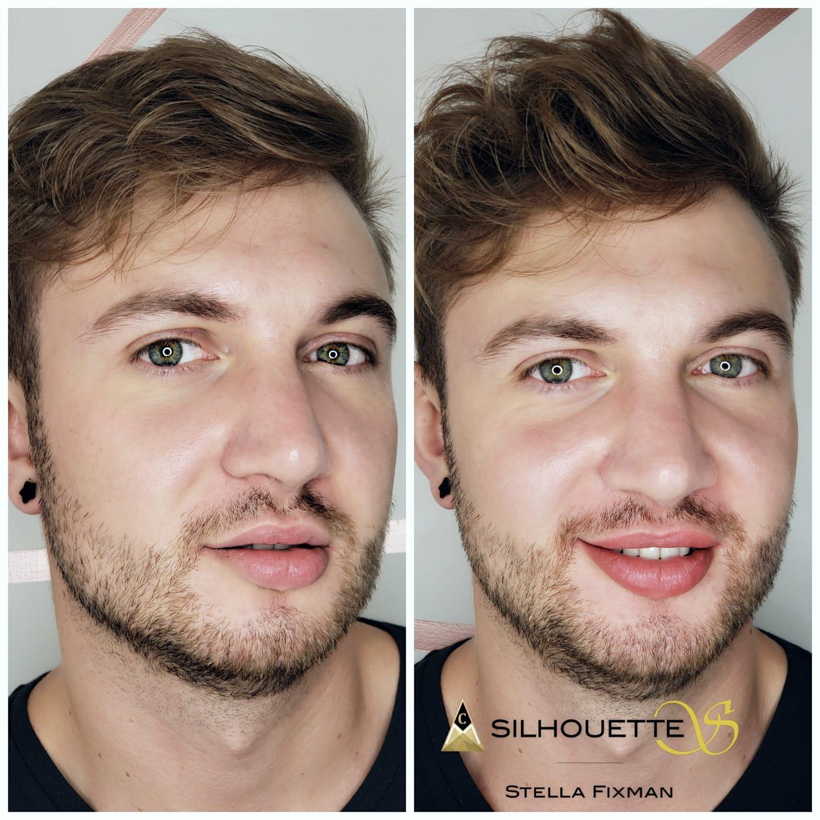 Male Lips Blush