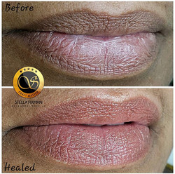 Healed Lip Blush