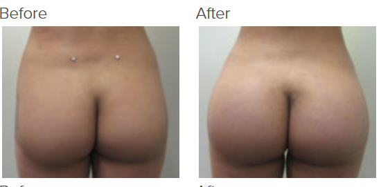 Butt Implant Los Angeles