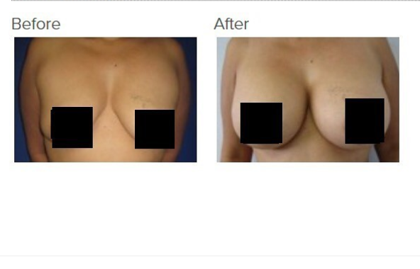 Breast Augmentation Los Angeles Breast Implants Los Angeles