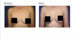 Breast Augmentation Los Angeles Breast Implants Los Angeles