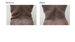 Bra-line Backlift Questions Answered by Dr. Kenneth Benjamin Hughes