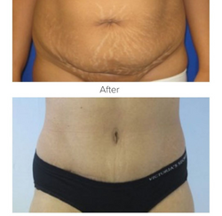 Tummy Tuck Los Angeles Mommy Makeover Los Angeles