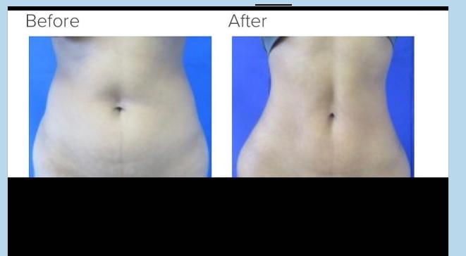 Liposuction 360 Los Angeles