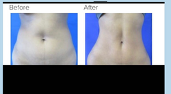 Liposuction 360 Los Angeles