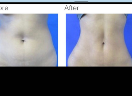 Plastic Surgery Blog Answered by Dr. Kenneth Benjamin Hughes