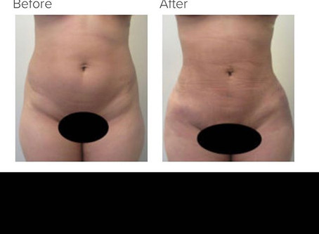 Can You Get an Hourglass Shape from Liposuction of the Flanks Alone?
