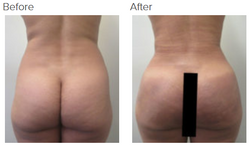 Liposuction Revision and Brazilian Buttlift Revision Los Angeles