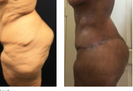Thigh Lift (Thighplasty) Questions Answered by Dr. Kenneth Benjamin Hughes
