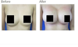 Breast Augmentation Los Angeles Breast Implant Los Angeles
