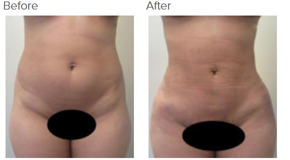 Liposuction 360 and Brazilian buttlift