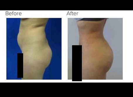 More Brazilian Buttlift Questions Answered with Dr. Kenneth Hughes