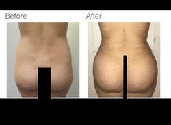 Liposuction and Brazilian buttlift Los Angeles