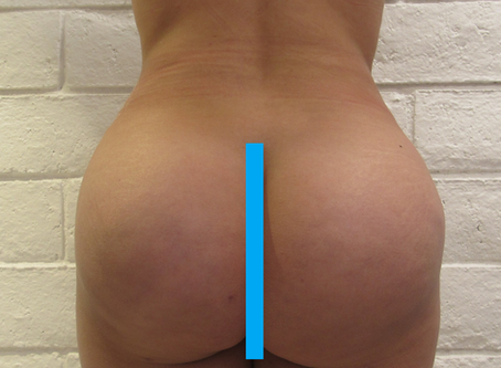 Can a Patient with a Big Butt and Hips have a Brazilian Buttlift (BBL)?