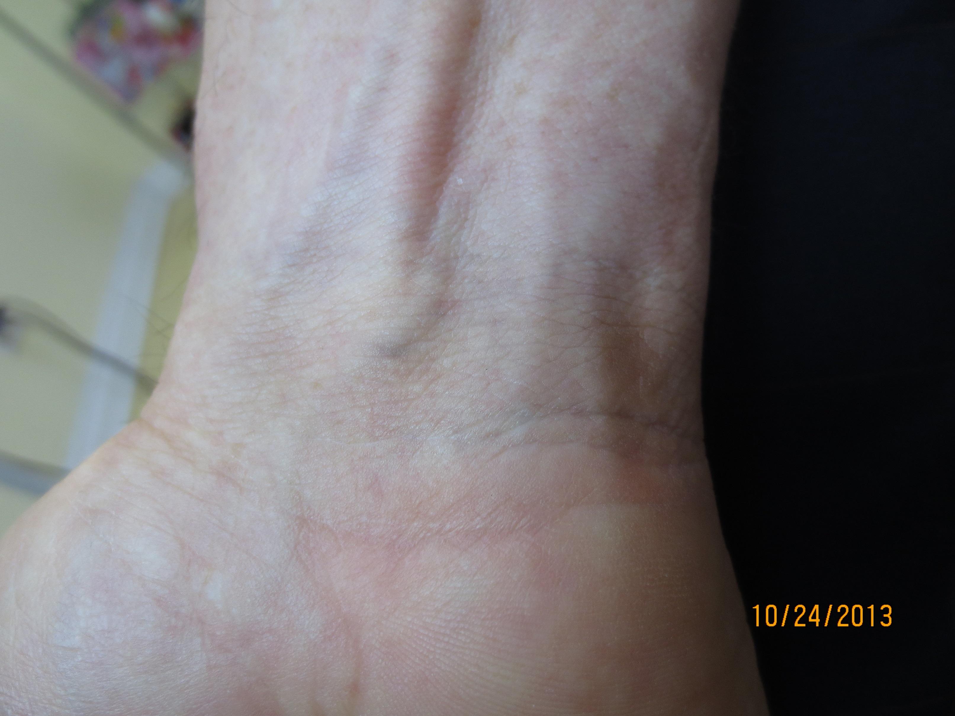 Inner Wrist