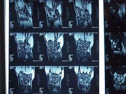 x-ray-1459448