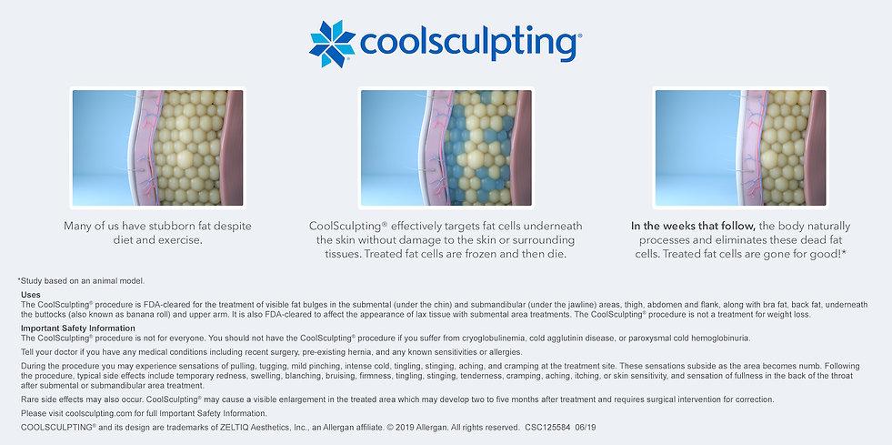 CSC125584-How-CoolSculpting-Works-Illust