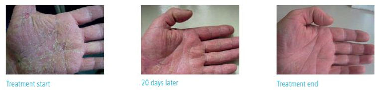 psoriasis and eczema laser treatment before and after photos