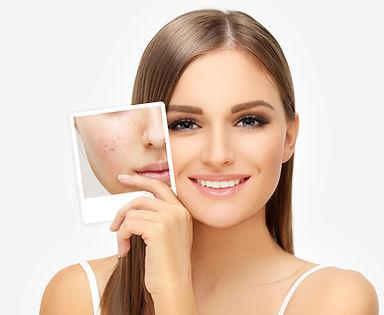 IPL acne treatments