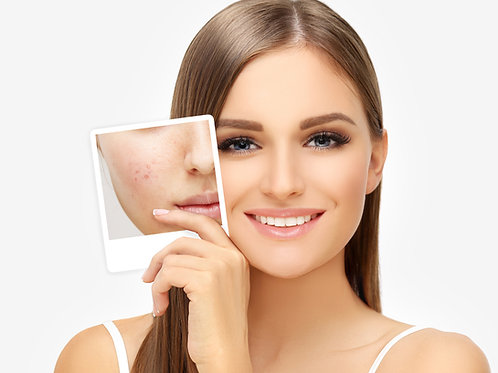 Acne & Acne Scars Treatment - Spectra Dual Mode Q-Switched Nd: Yag Laser