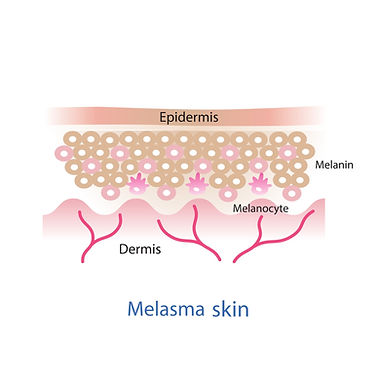 melasma skin.jpg