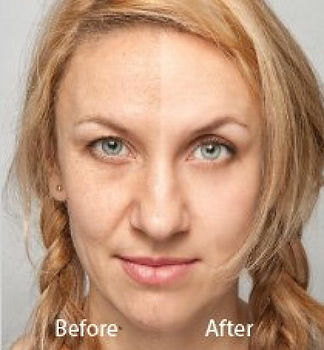 hollywood laser peel before and after
