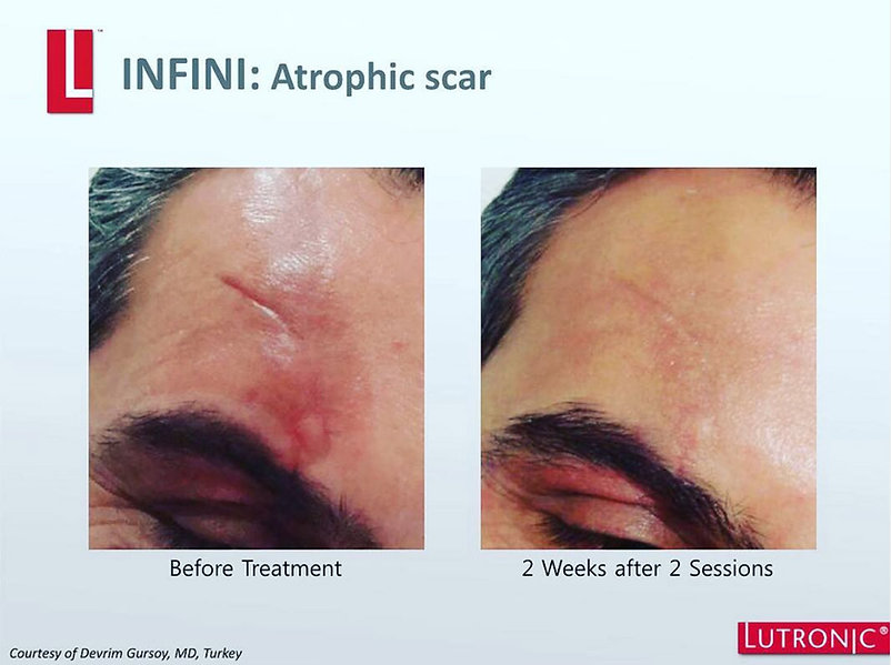 Infini-Atrophic-Scar-Before-&-After.jpg