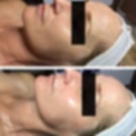 iS Clinical Fire & Ice Facial before & after