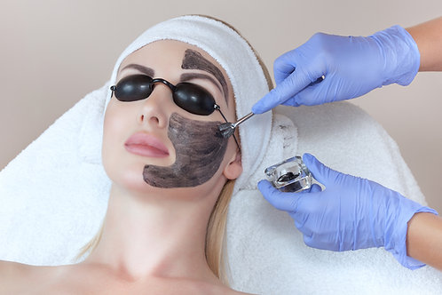 Hollywood Laser Peel