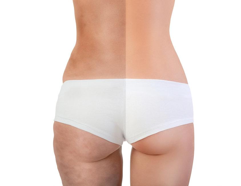 body-contouring-treatments.jpg