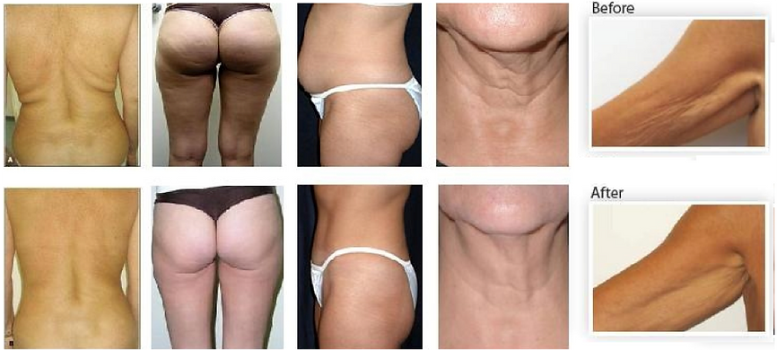 Ultrasonic Cavitation Fat Removal Results