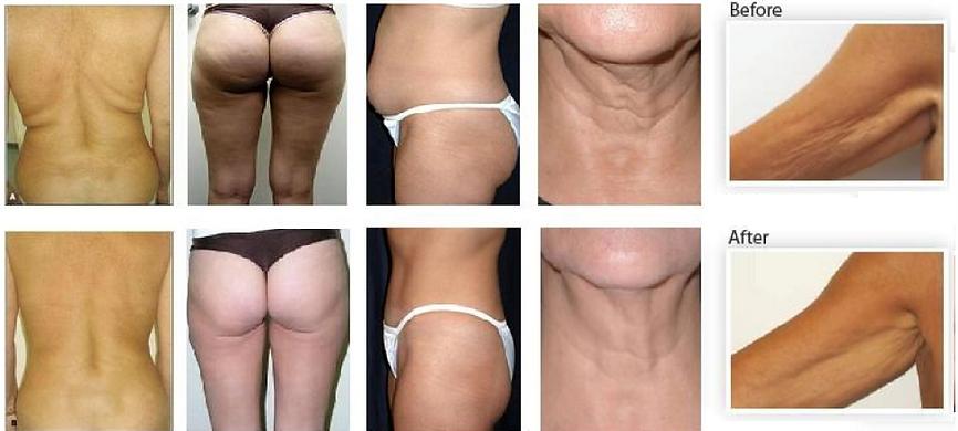 Ultrasonic Cavitation Fat Removal Results