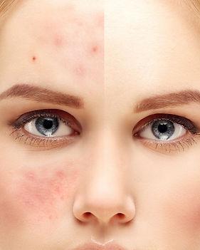 laser-acne-treatments_edited.jpg