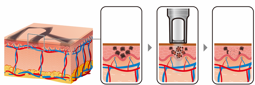laser-tattoo-removal-process.png