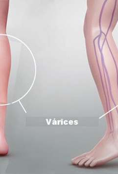 angiologia y cirugia vascular.jpg