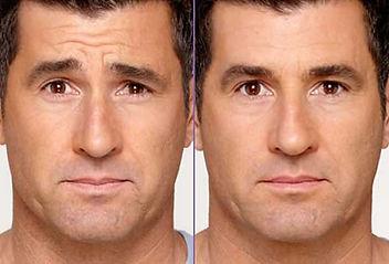 botox-hombre.jpg