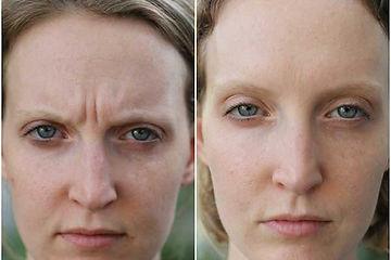 botox-mujer.jpg