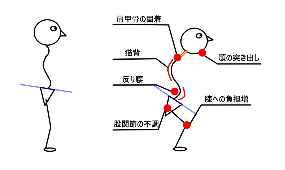 姿勢と症状
