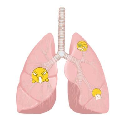 肺にウィルス