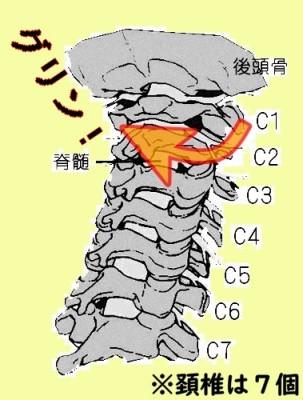 頚椎のねじれ