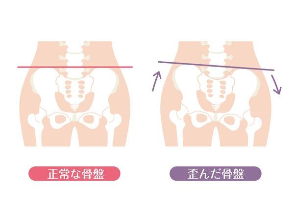 骨盤のゆがみと坐骨神経痛.jpg