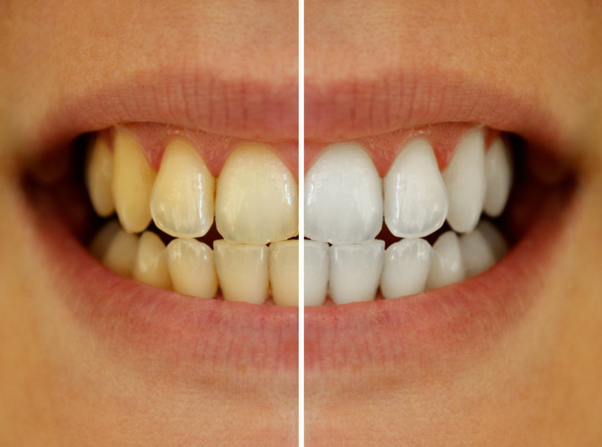 In-Office vs. At-Home Whitening